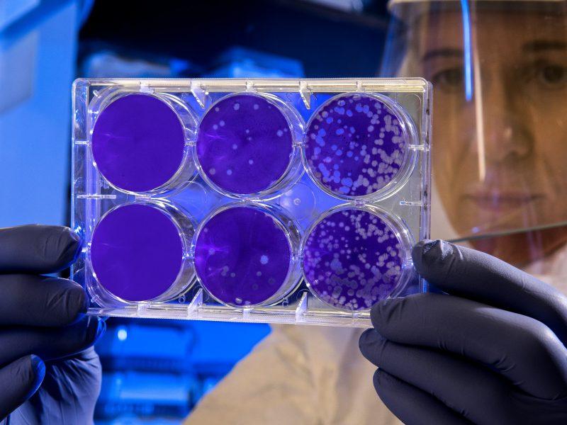 Osoby zakażone SARS-CoV-2 infekują innych najsilniej przez pierwsze 5 dni, twierdzą naukowcy ze Szkocji (Photo by CDC on Unsplash)